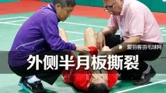 薛松外侧半月板撕裂,医生建议手术