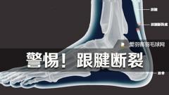 【伤病小常识系列五】关注跟腱损伤