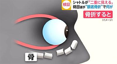 日本医学专家动画分析桃田眼睛伤势  看东西或有重影