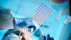 新增报告病例波动下降,治愈比例由最低时的1.3%上升到10.6%