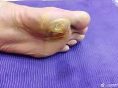 谌龙脚底起大水泡 移动受到影响